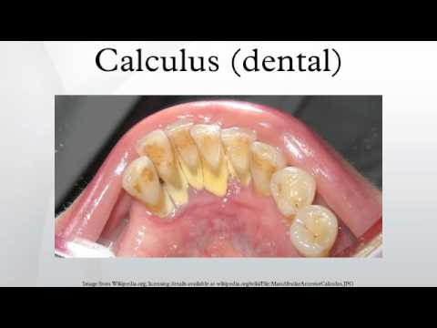 calculus teeth