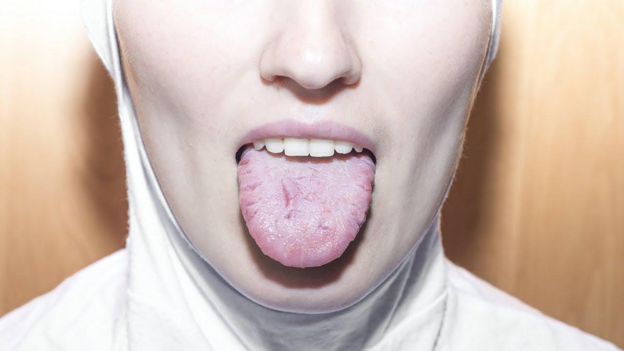 cancerul lingual simptome)