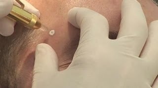 Removing warts: how to
