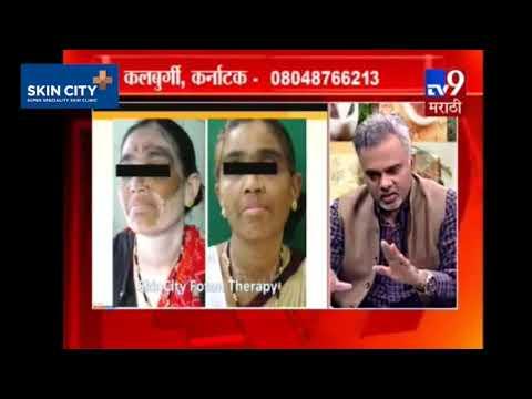 पांढरे डाग, केलॉईड्स, घामावर आधुनिक उपचार | डॉ. नितीन ढेपे-TV9 Marathi | Vitiligo, Keloids, Sweat