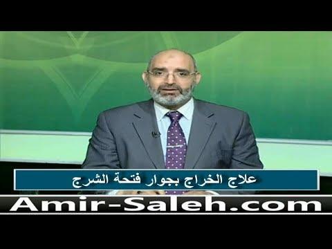 علاج الخراج بجوار فتحة الشرج | الدكتور أمير صالح