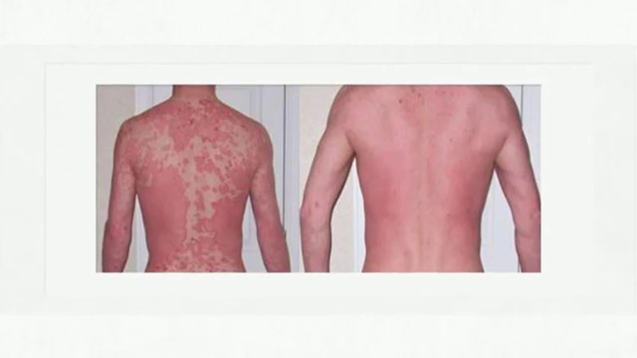Revitol Dermasis Psoriasis Cream Reviews Youtube