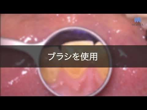着色が落ちにくい場合 | 歯面研磨材 LUNOSプロフィーペースト