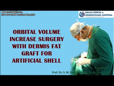 Orbital volume increase surgery with dermis fat graft for artificial shell