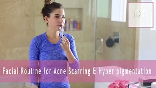 Facial Tips for Acne Scarring & Hyper pigmentation | Rachel Talbott
