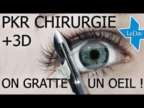 ON GRATTE VOTRE OEIL ! Opération en PKR pour corriger la vue
