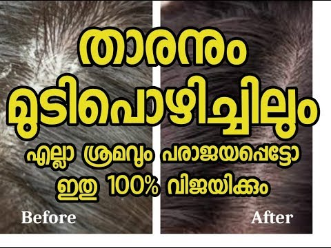 താരനും മുടികൊഴിച്ചിലിനും  |Dandruff and hair fall Malayalam Health tips thumbnail
