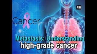 Metastasis: Understanding high-grade cancer - #Health News
