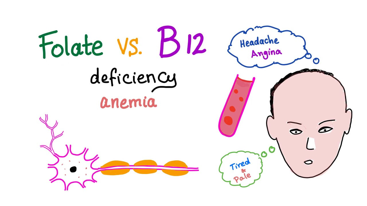 vit b12 deficiency without anemia