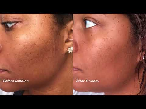 Glossier Solution: Aziza, Before and After