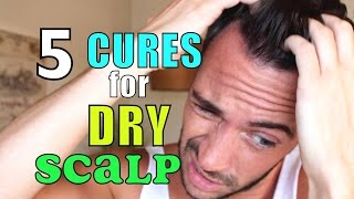 HOW I GOT RID OF DANDRUFF & DRY SCALP | 5 Natural Home Remedies | Cheap Tip #231
