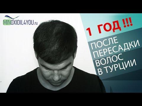 ПЕРЕСАДКА ВОЛОС В ТУРЦИИ 1 ГОД РЕЗУЛЬТАТ. Мой результат после пересадки волос в Турции Minoxidil4you