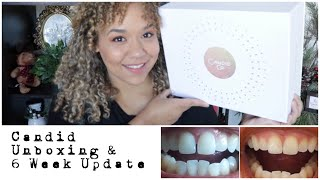 Candid Aligners Unboxing and Teeth Update