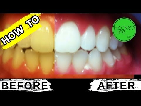 natural-ways-to-whiten-teeth-at-home
