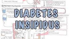 hqdefault - Acute Diabetes Insipidus In Severe Head Injury A Prospective Study