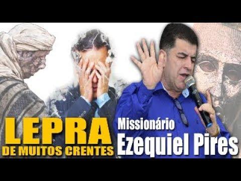missionário-ezequiel-pires---a-lepra-de-muitos-crente-(domingo-da-grandeza-de-deus)