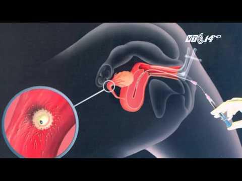 (VTC14)_Thực hư chuyện nữ tử tù mua tinh trùng để mang thai