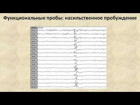 ЭЭГ при эпилепсии (EEG in epileptic patients)