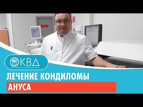 Лечение кондиломы ануса. Клинический случай №1