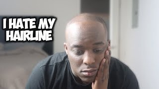 i hate my hairline . . . .