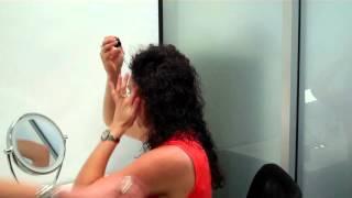 Receding Hairline Treatment   Minoxidil