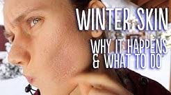 hqdefault - Acne Skin Care Tips Winter