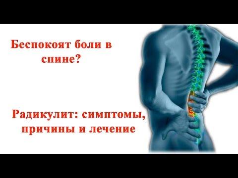 Беспокоят Боли в Спине?  Радикулит:  Симптомы,  Причины,  Лечение