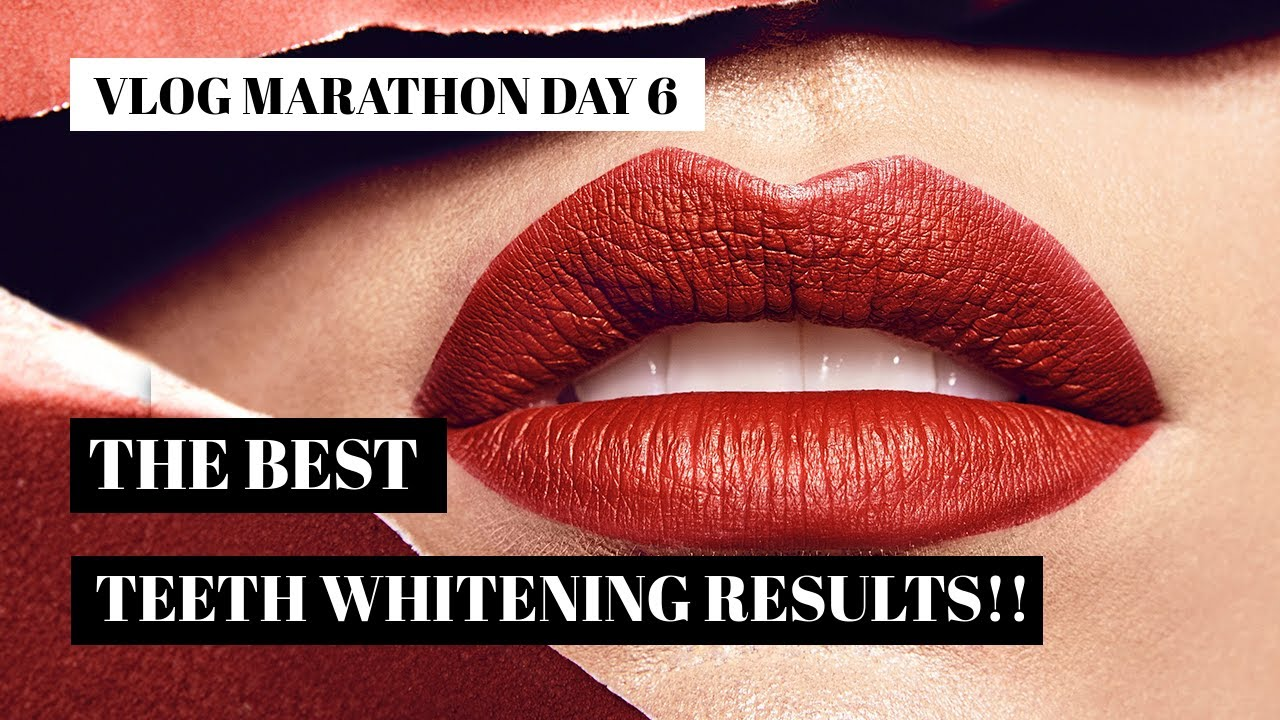 Final Results Arc Teeth Whitening Kit Vlog Marathon Day 6