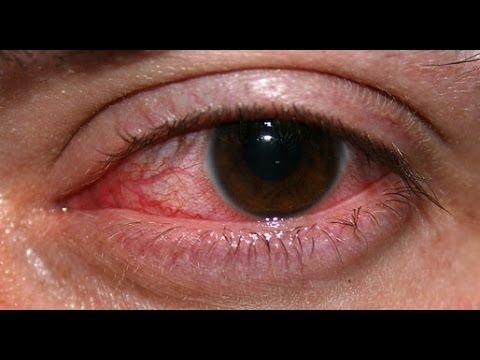 Cetaphil Moisturizing Lotion For Dry Skin Under Eyes Youtube
