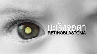 ศิริราช360° [by Mahidol] เด็กตาวาว (1/2)