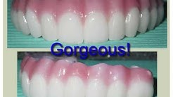 All on 4 Dental Implants and Zirconium Fixed Denture by Dr. Bruce Kanehl