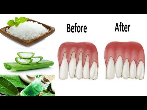 Top 10 Home Remedies For Thyroid Disease from YouTube · Duration:  5 minutes 44 seconds