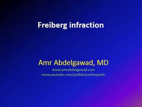 Freiberg infraction