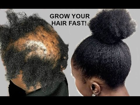 your-hair-will-grow-like-crazy-grow-hair-long,-thick-&-healthy-fast!