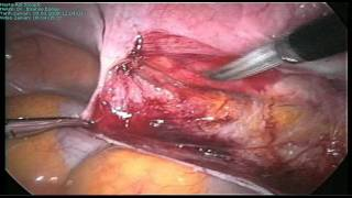 Laparoscopic ureter dissection before hysterectomy.avi