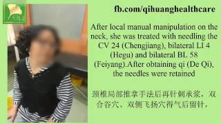 Manual manipulation combined with acupunction for neck pain