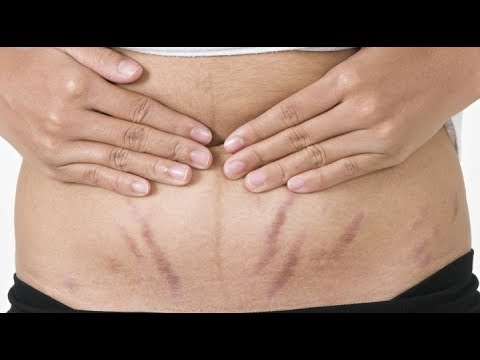 Bio Oil for Remove Pregnancy Stretch Marks Review Hindi