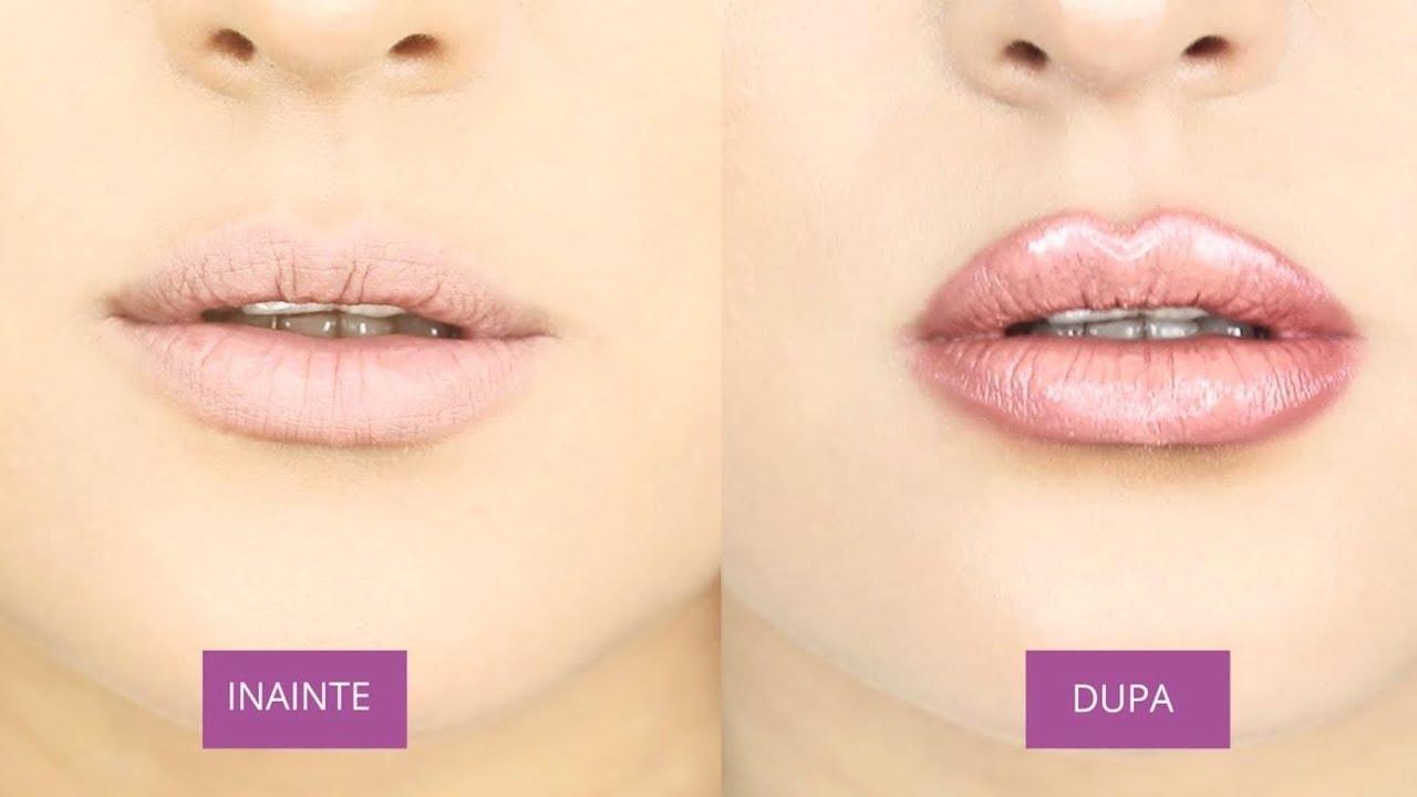 buzele înainte și după pierderea în greutate)