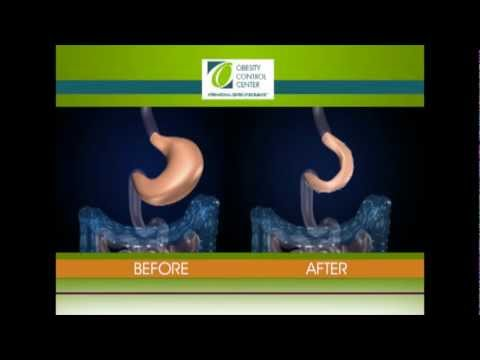 OCC Live Surgery Gastric Plication World Transmission