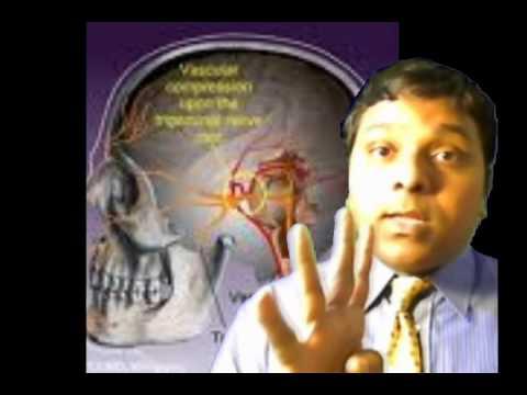 Treatment for Trigeminal Neuralgia: UCSF Neurosurgery.