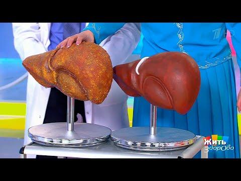 Новые методы лечения цирроза печени. Жить здорово! (11.12.2017)