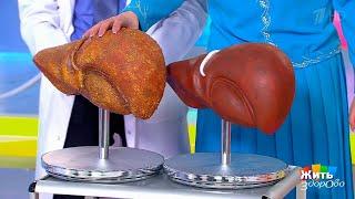 Жить здорово! Новые методы лечения цирроза печени(11.12.2017)