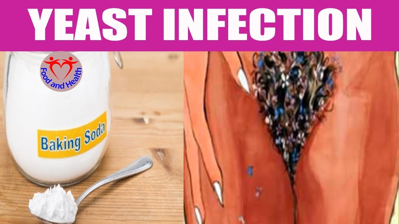 How To Use Baking Soda For Yeast Infection Youtube