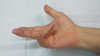 maladia dupuytren   dupuytren disease