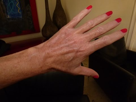 How To Get Rid Of Bulging Veins On Hands Naturally