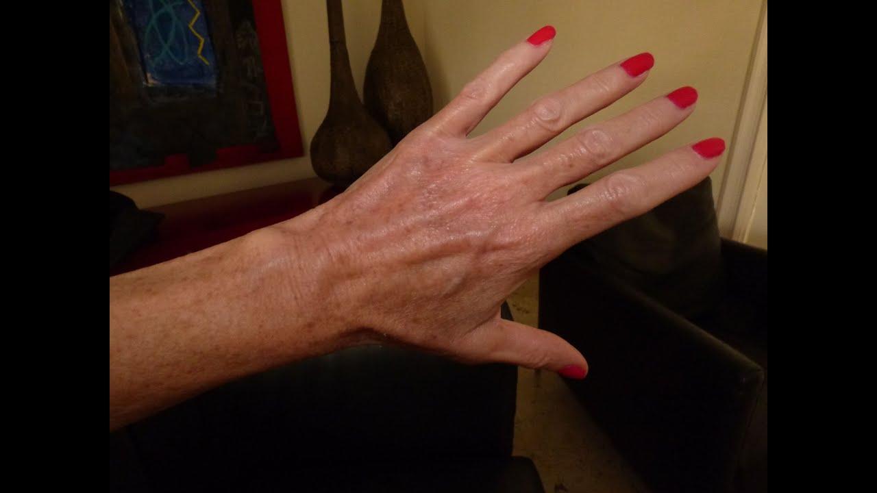 Hand Vein Treatment Youtube