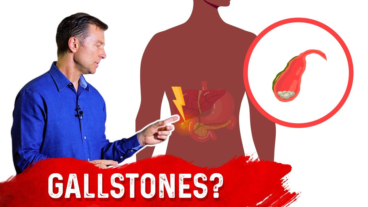 Gallbladder Problems and Prolonged Fasting