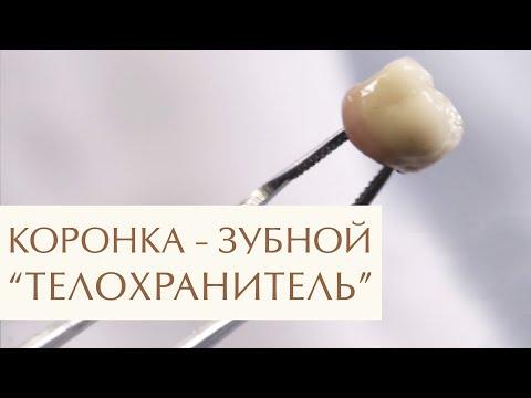 🤔 Зачем и когда нужно ставить коронку на зуб: ответ стоматолога. Зачем ставить коронку на зуб. 12+