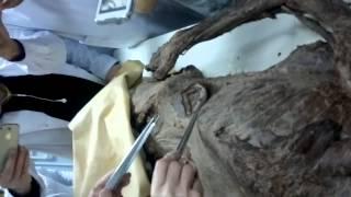 Анатомия   мышцы живота и груди