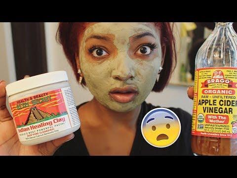 Aztec Indian Healing Clay Mask + Hormonal Acne Journey & Pics
